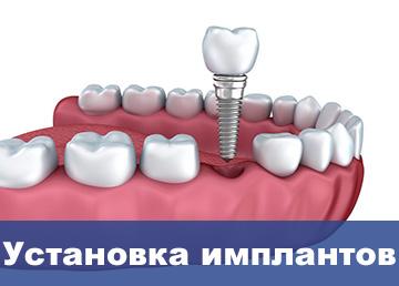 ustanovka-implantov