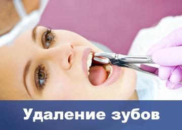udalenie-zubov-moscow